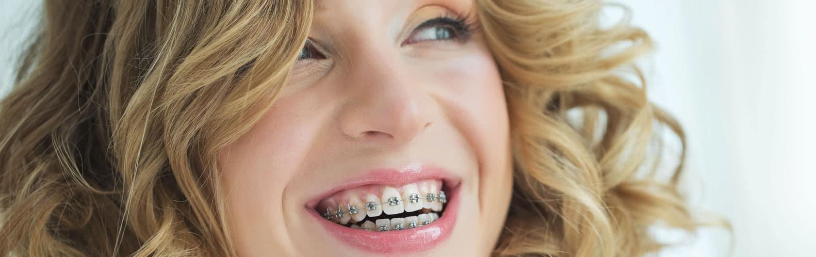 Zahnzusatzversicherung für Kieferorthopädie